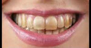 Easy Home Teeth Whitening Tips