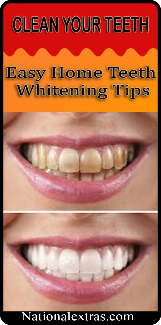 Easy Home Teeth Whitening Tips Do It Yourself