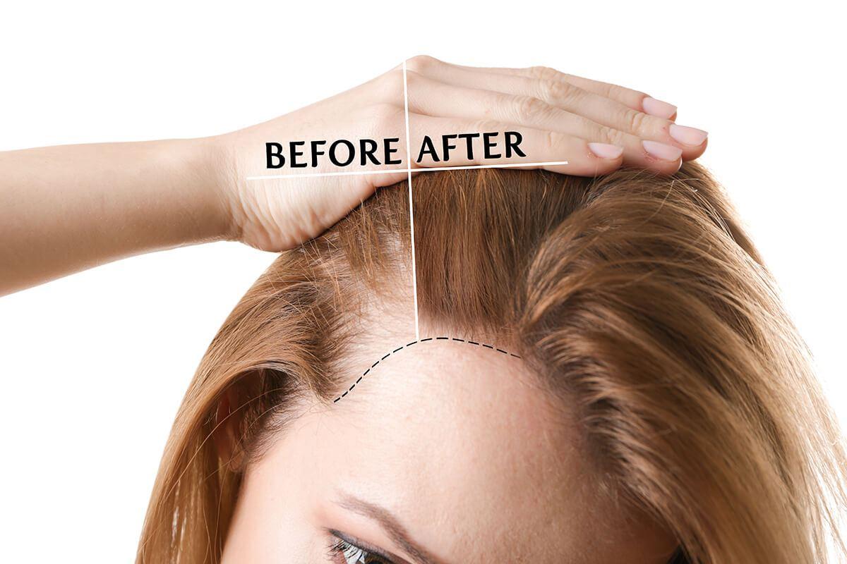stop hair loss, grow hair