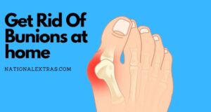 Get rid of bunions
